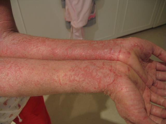 zioła na atopowe zapalenie skóry