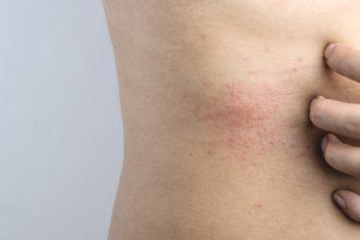 zioła na atopowe zapalenie skóry (AZS)