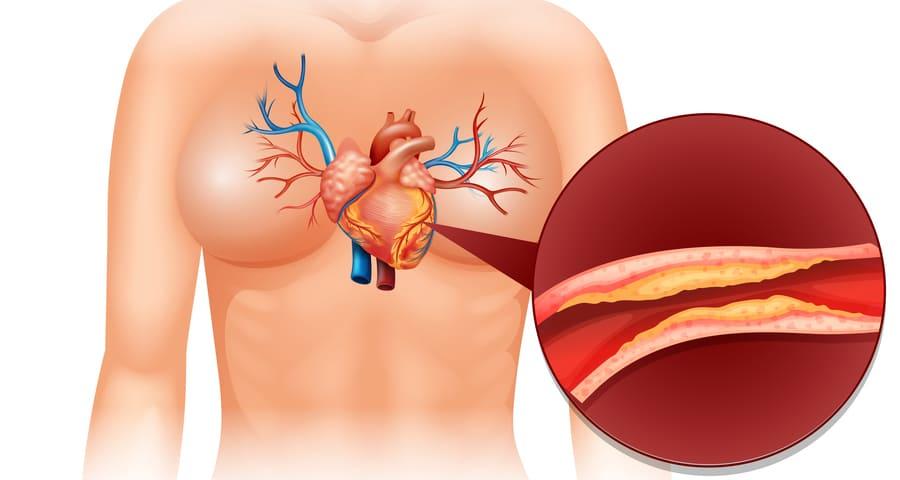 zioła na cholesterol